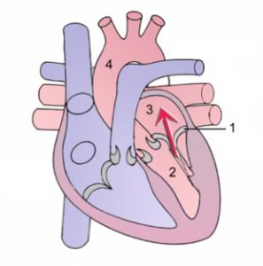 Behandlung Herzklappeninsuffizienz