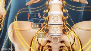 Vierter Lendenwirbel Behandlung